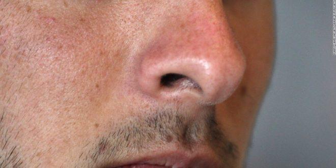 آیا شناسایی بیماریها از روی بو ممکن است؟