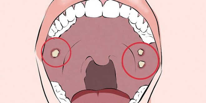 aid1224646-v4-728px-Recognize-Signs-of-Oral-Cancer-Step-2