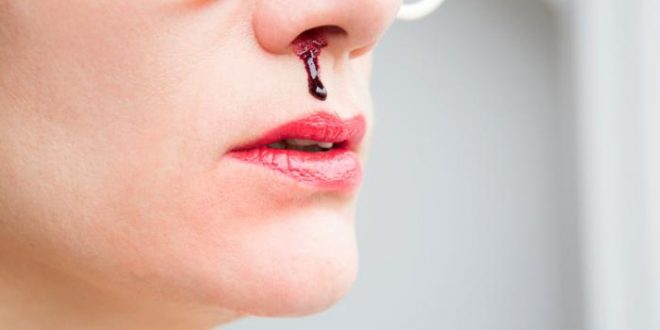 woman-with-a-nosebleed-closeup